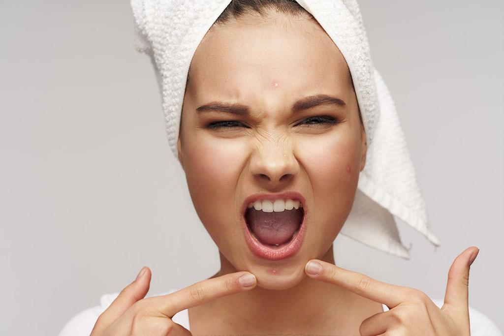 Comment connaître son type d'acné et le traiter ?